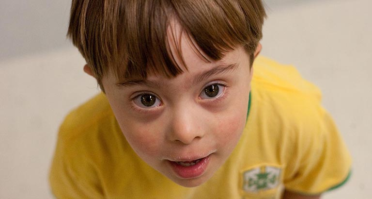 Young man with down syndrome.