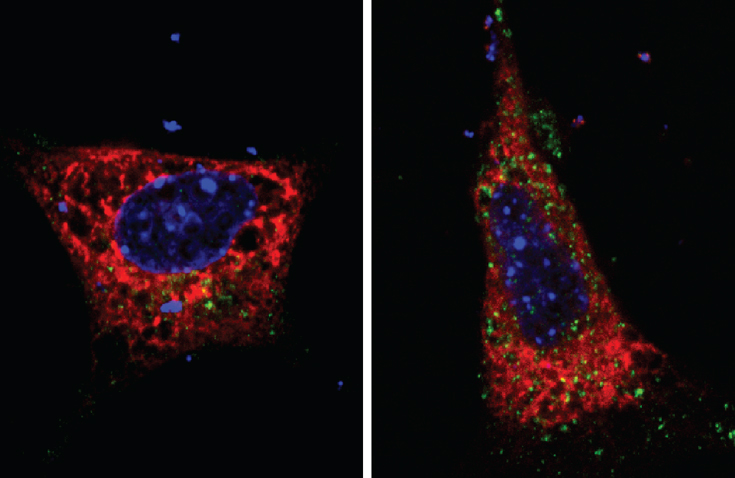 Puglielli research - mice with and without Atase1